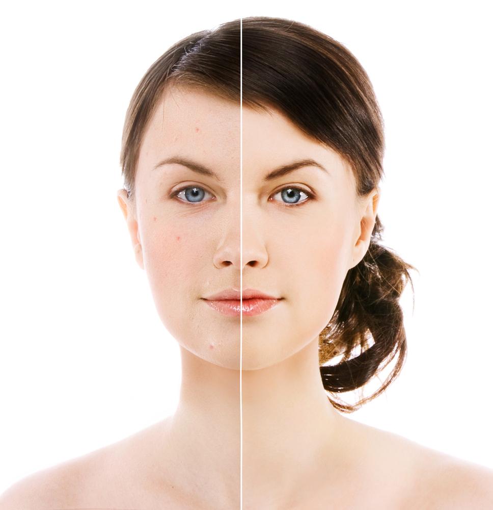 natural acne treatment