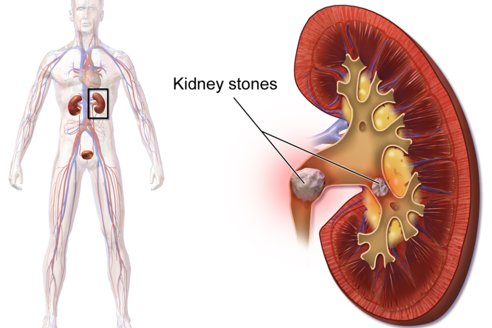 Causes Symptoms And Treatment Kidney Stones Did U Know Amazing And Interesting Facts About World
