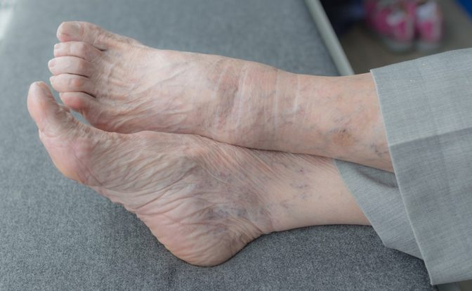 Foot Care Importance